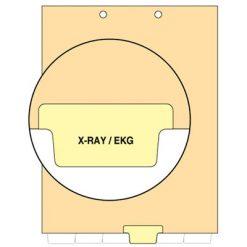 X-Ray/EKG Tab Index Chart Divider